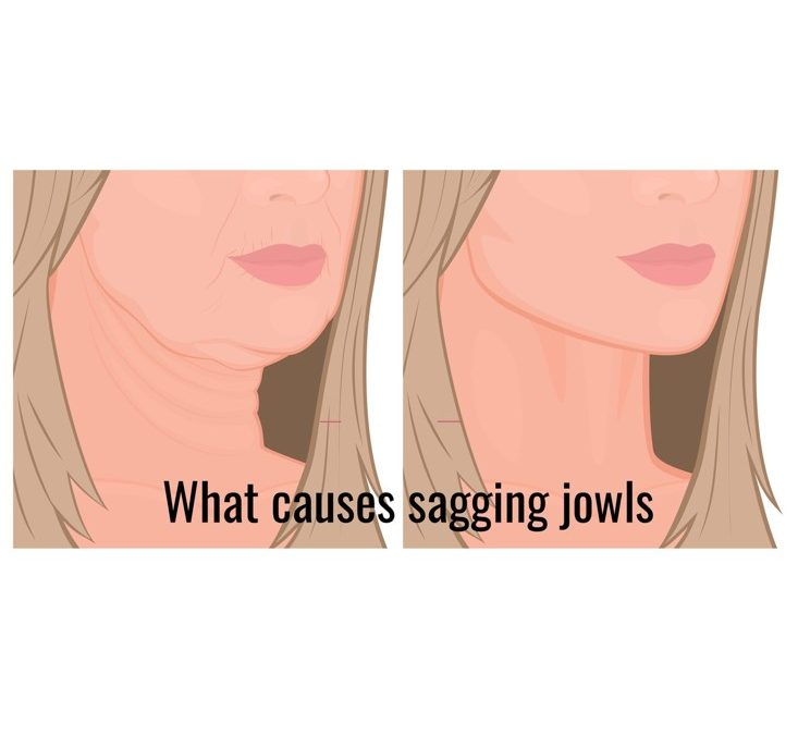 What is the best treatment for sagging jowls?